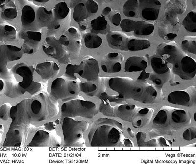 Microscopic image of human bone